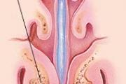 """В УМБАЛ """"Св. Георги"""" ще демонстрират ендоназална синус хирургия на новородено"""