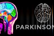 Над 12000 души у нас страдат от Паркинсон