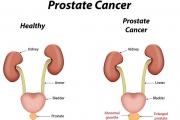 Над 400000 души се разболяват от рак на простатата годишно в Европа
