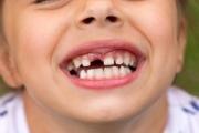 Деминерализацията на зъбчетата предшества кариеса