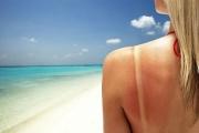 Слънчевата алергия може да е и животозастрашаваща в някои от проявите си