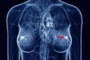 Повече от 5500 жени се прегледаха безплатно за рак на гърдата