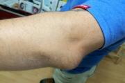 Еднократно нараняване на лакътя може да провокира бурсит