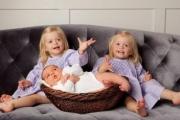 Осигуряват безплатно ранно лечение на деца с хемангиом