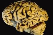 1/5 от англичаните смятат, че деменцията е неделима част от остаряването