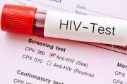 Носителите на ХИВ у нас официално са 3312 души