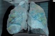 Ново проучване подсказва защо някои пациенти умират от Ковид