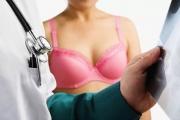 Мамолози настояват за увеличение на клиничната пътека за лечение на рак на гърдата