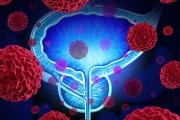 Стериотактична радиотерапия ще помага на милиони мъже срещу рак на простатата