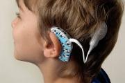 Едва 2% от българите с пълна глухота имат импланти