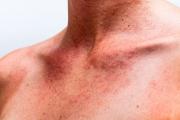 20% от българите са с алергична хрема