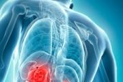 С 5-10% годишно расте броят на болните от рак на простатата