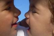 Организират курс за родители на деца с лицеви аномалии