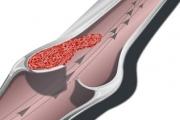 Тромб във вените увеличава риска от инфаркт
