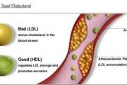 Лошият холестерол е рисков фактор за стенокардия